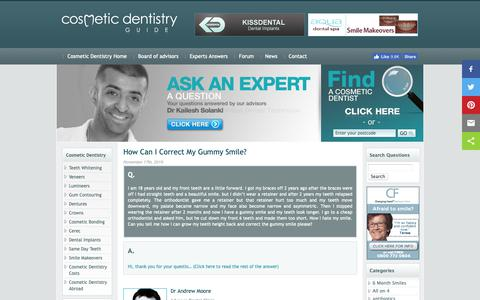 Screenshot of Blog cosmeticdentistryguide.co.uk - Cosmetic Dentistry Guide Expert Answers Blog - captured April 30, 2019