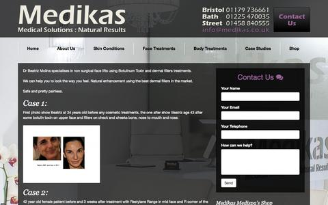 Screenshot of Case Studies Page medikasmedispa.co.uk - » Case Studies | Anti Wrinkle Botulinum Toxin | Hair Removal | Laser Clinic in Bath City Somerset – www.medikasmedispa.co.uk - captured Oct. 1, 2014