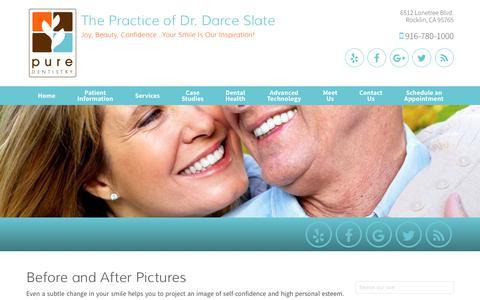 Screenshot of Case Studies Page puredentistry.net - Case Studies Rocklin CA, The Practice of Dr. Darce Slate - captured July 24, 2018