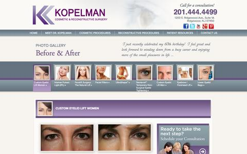 Screenshot of Case Studies Page nj-cosmeticsurgery.com - Case Studies / Photo Galleries Archive » Eyelid Surgery | Droopy Eyelid | Eyelid Lift - captured Oct. 6, 2014